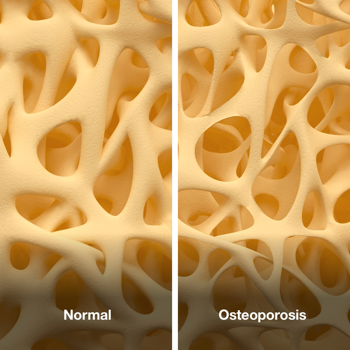An image of healthy bones on the left, and bones affected by osteoporosis on the right